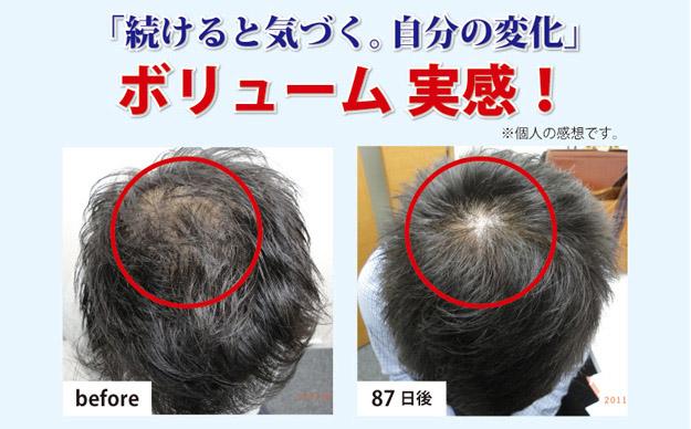 育毛スカルプシステム3カ月の結果